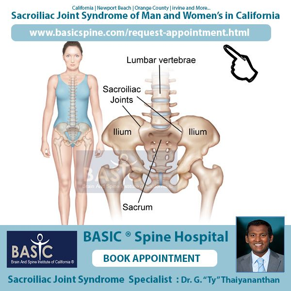 Women Si Joint Pain Hospital Orange County Si Joint Anatomy